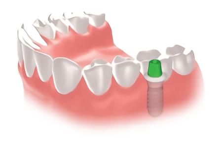 http://matsushima-dent.com/wp-content/uploads/2017/06/implant-01.png