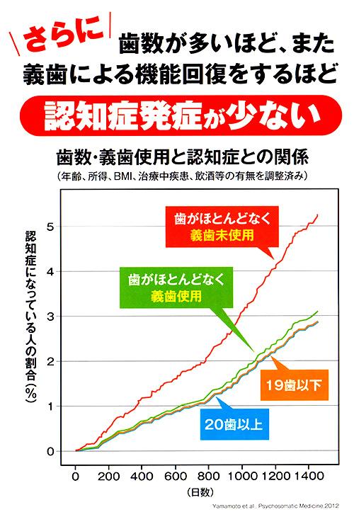 http://matsushima-dent.com/wp-content/uploads/2017/09/s1sisyu03.jpg